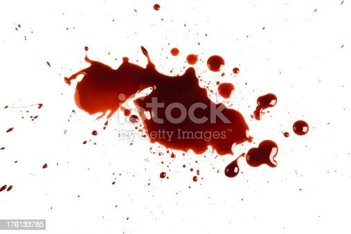 external bleeding