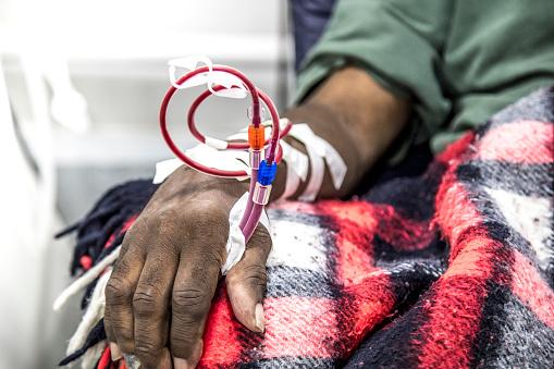 hemodialysis